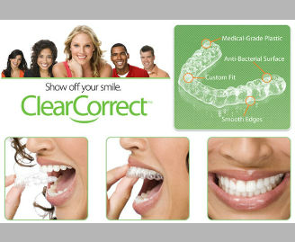 ClearCorrect-braces