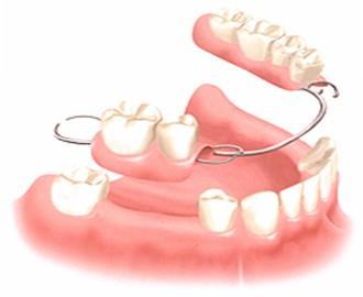 dental-bridge1
